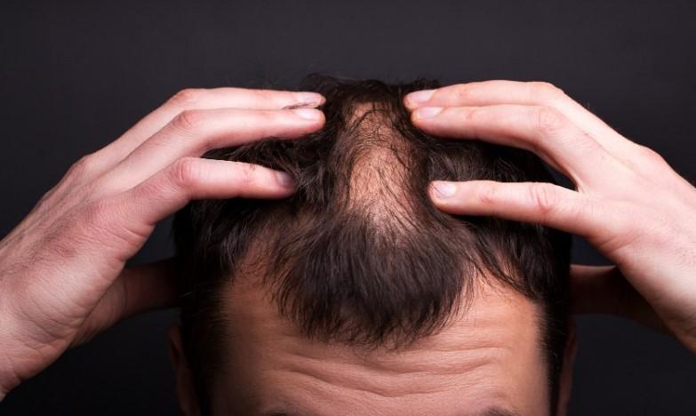 beard fall after covid